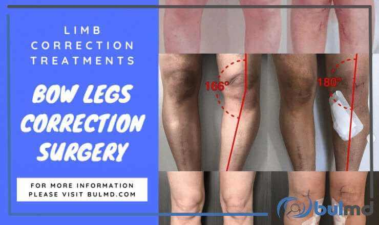 Bowed Leg Syndrome & Leg Curvature Correctional Therapies