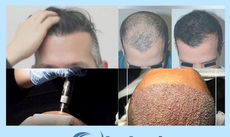 The Best Treatment for Hair Loss