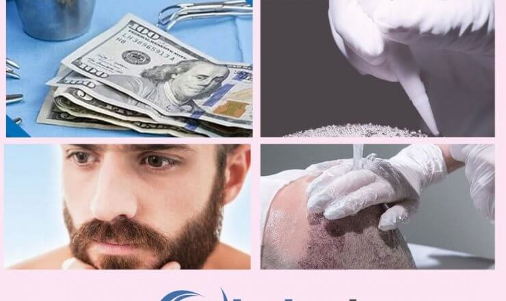 Hair Transplant Surgery Cost