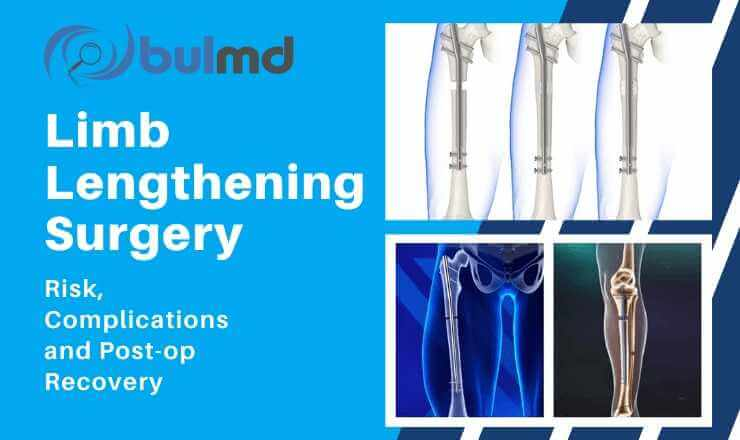 Limb Lengthening Surgery - Risks, Complications & Post-Op Recovery