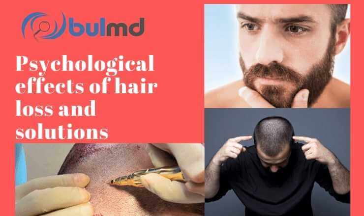 Psychological effects of hair loss and treatments