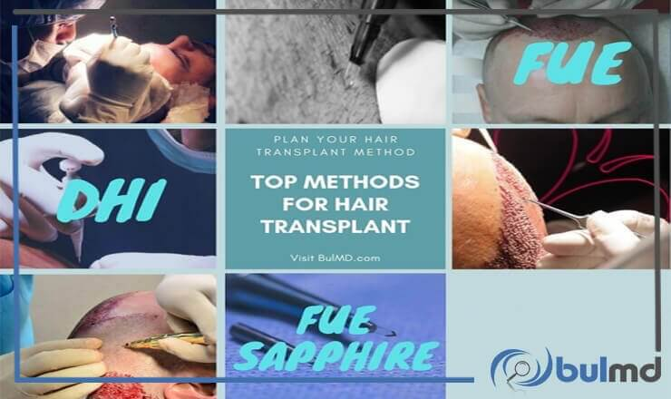 Which Hair Transplant Method is the Best and Why?