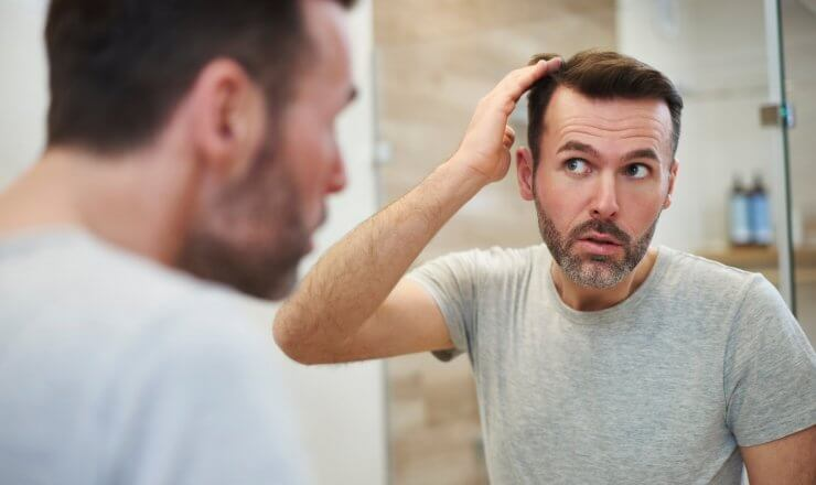 3 Shocking Causes of Hair Loss You Might Not Have Heard Before