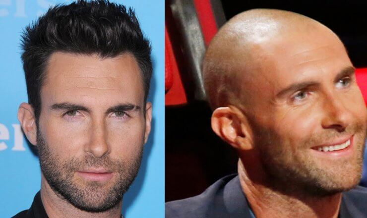 Celebrity Hair Transplants - Undergoing Cosmetic Procedures As a Public Figure